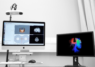 Tractography-guided Neuronavigation