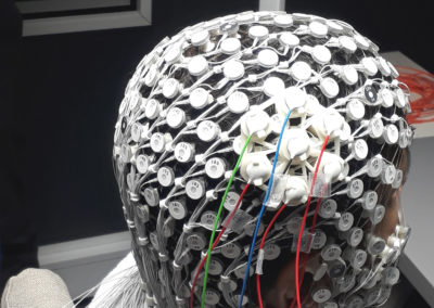 Concurrent tACS-EEG